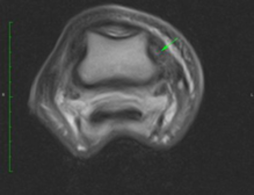 Collateral Ligament Tear – Deep Foot Pathology